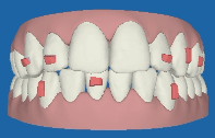 invisalign-3d-front-view